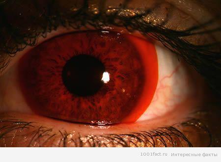 Необычные контактные линзы 1